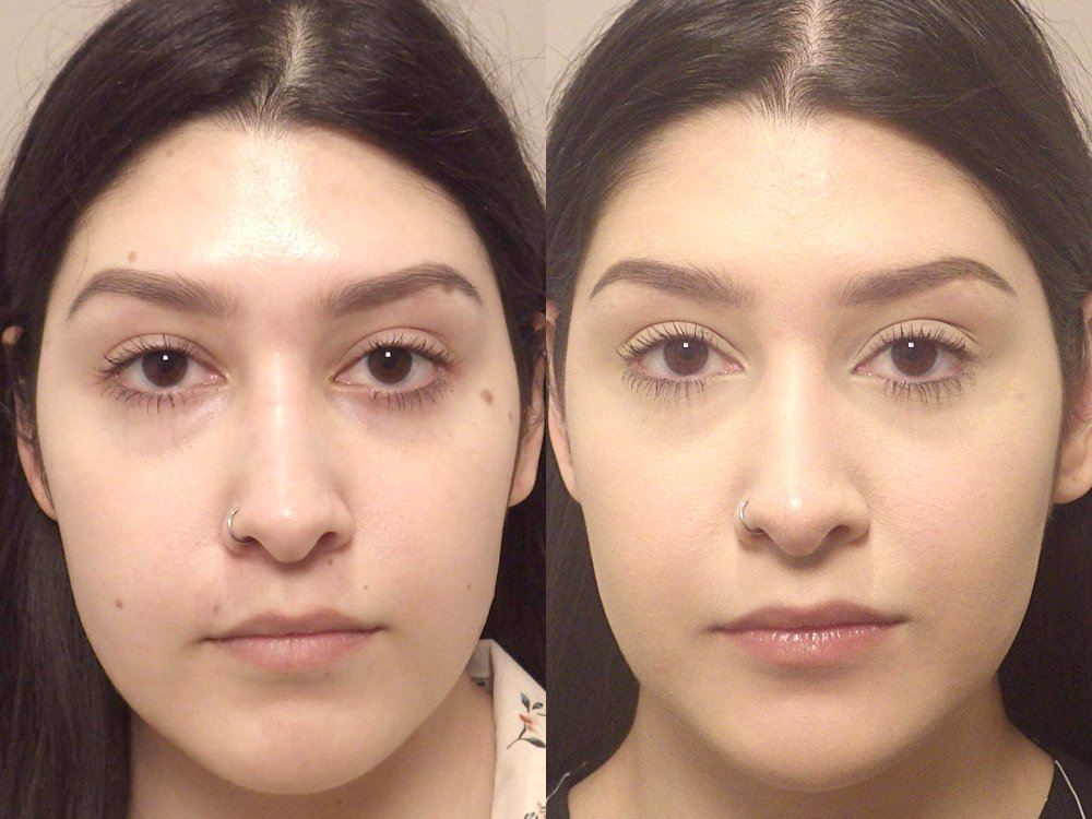 Facial mole removal photo patient 11 front view | Guyette Facial & Oral Surgery, Scottsdale, AZ