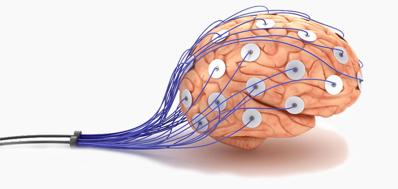brain-with-electrodes-800-small