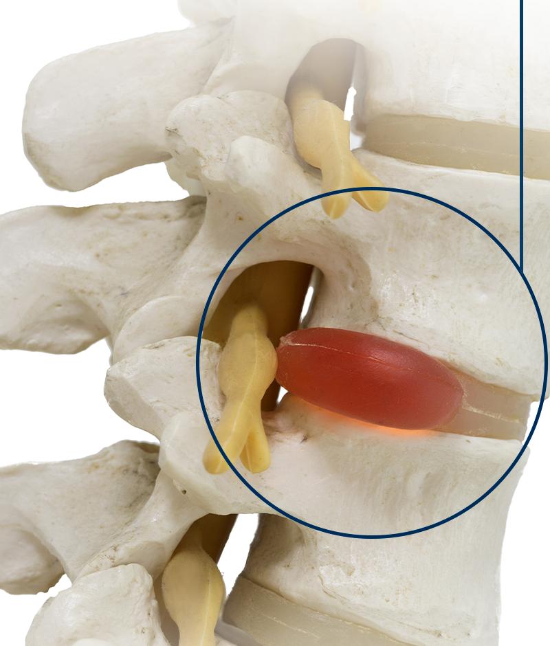Conheça os tratamentos para hérnia de disco
