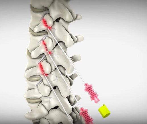 Tratamentos percutâneos para dor – Rizotomia