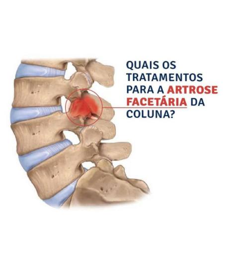 Quais os tratamentos para a artrose facetária?