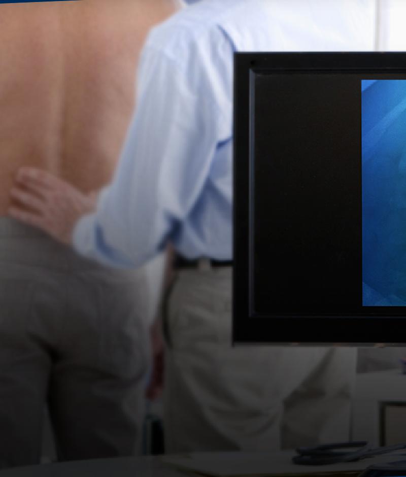 Como é a recuperação após a cirurgia de coluna?