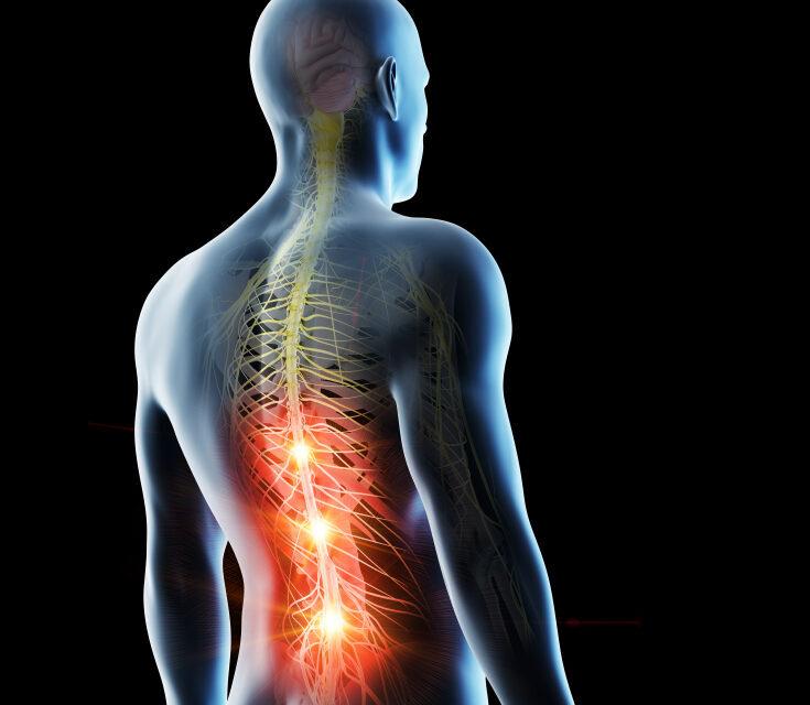 Por que um problema na coluna pode irradiar dores para o corpo todo?