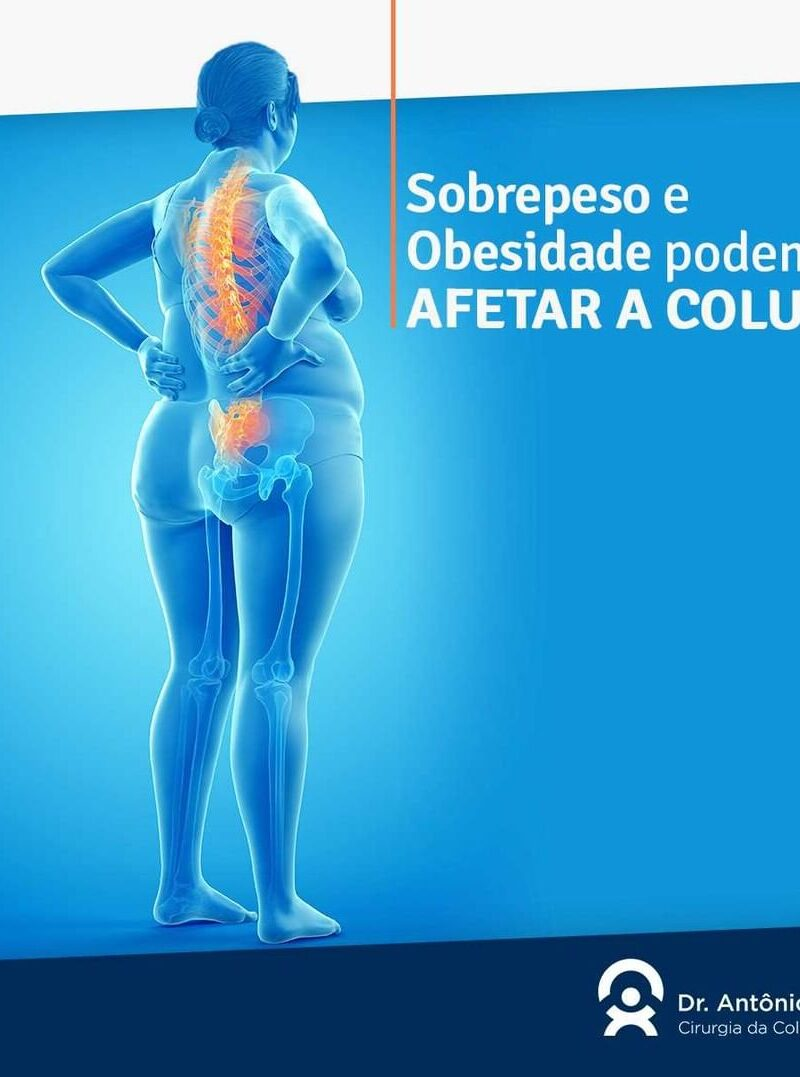 Sobrepeso e obesidade podem afetar sua coluna