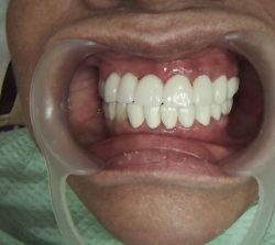 Cosmetic Dentistry After image