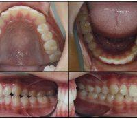 Before Orthodontics-case1