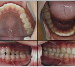 Before Orthodontics-case1
