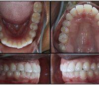 Before Orthodontics-case2
