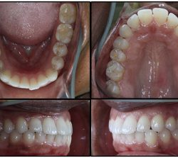 Before Orthodontics-case2