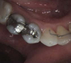Bloomfield Dental center - Cosmetic Dentistry Case - Before
