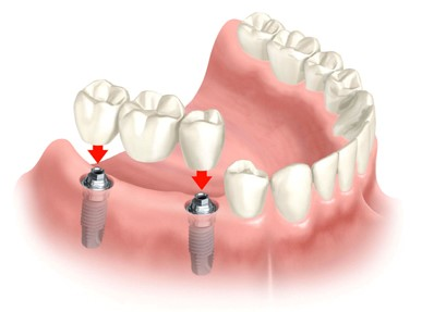 Bloomfield Dental Center in Cerritos - How Much Do Dental Implants Cost?