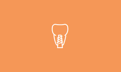 Dental Impants | Bloomfield Dental Center | Top Dentist in Cerritos