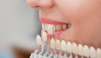 Porcelain Veneers to Restore Your Pearly Whites | Best Dental Center in Cerritos, CA
