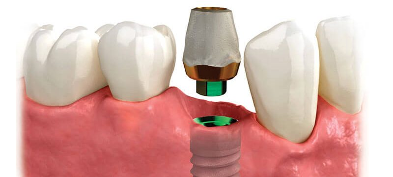 Single-Tooth Dental Implants