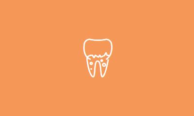 Crowns and Bridges | Dental Center in Orange County, CA | Top Cerritos Dentist