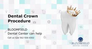 Dental Crown Procedure | Dental Center | Top Cerritos Dentist