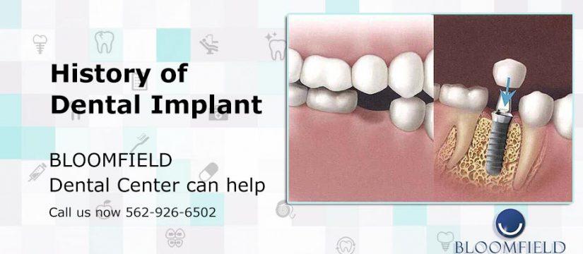 History of Dental Implant | Dental Center | Top Cerritos Dentist