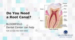 Do you need a Root Canal | Dental Center | Top Cerritos Dentist