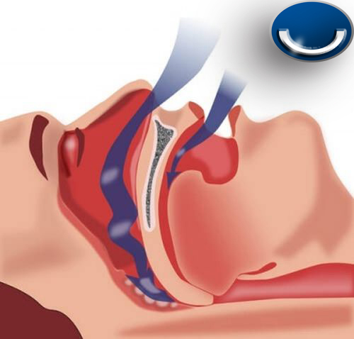 Sleep Apnea Dentist in Cerritos