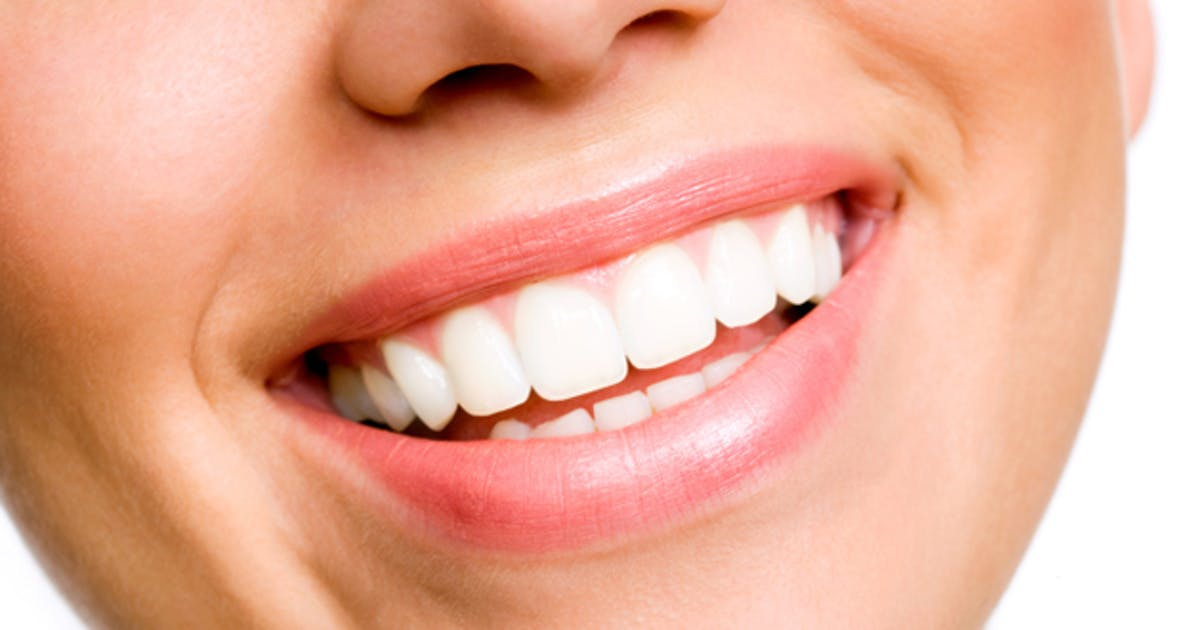 Teeth whitening in Cerritos