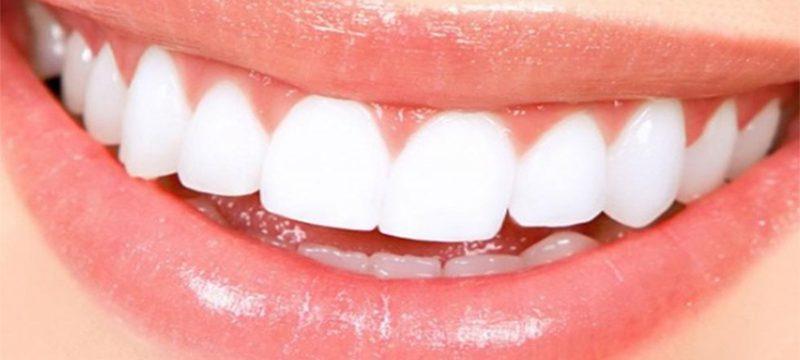 Gum Disease Awareness Month | Bloomfield Dental Center
