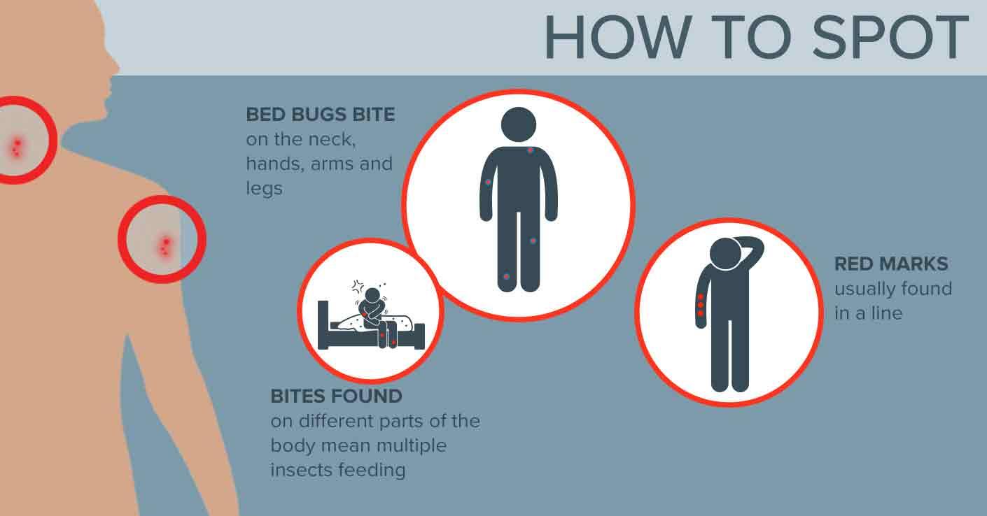 Hot To Spot Beg Bug Bites