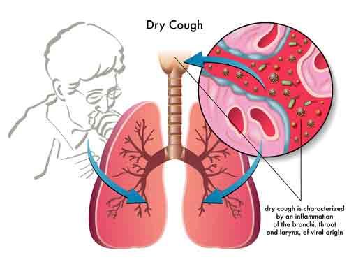 Dust Allergy Symptoms