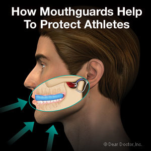 athletic-mouthguards-thumb-300x300
