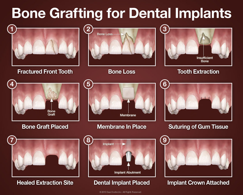 bone grafting for dentail implants, bone graft, bone graft for dental implant
