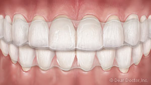 clear-aligners-300x169