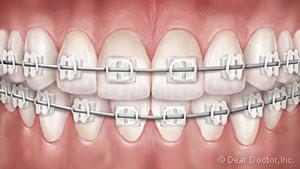 clear-braces-300x169