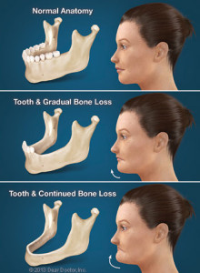 consequences-of-tooth-loss-thumb