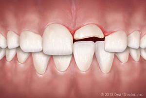 dental-injury-300x202