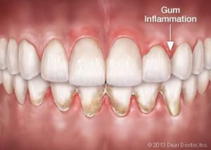 gum-inflammation-300x213