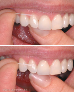 how-to-floss-your-teeth-240x300