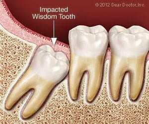 wisdom teeth, wisdom tooth, brooklyn dentist