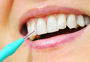 interdental-cleaning-300x206