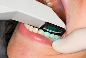 itero-scanning-teeth-300x204