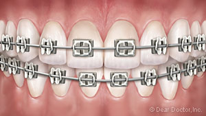 metal-braces-300x169