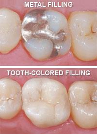 metal-vs-tooth-colored-fillings
