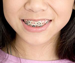 orthodontic-care-300x255
