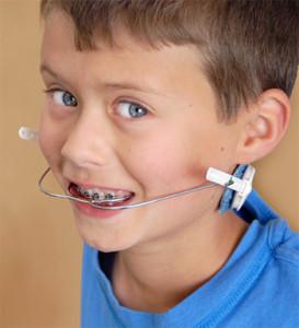 orthodontic-headgear-273x300