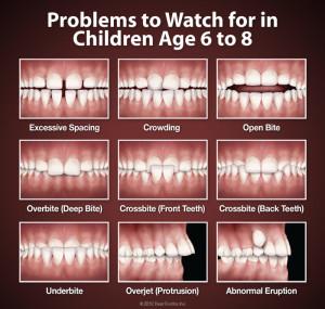 orthodontic-problems-300x285