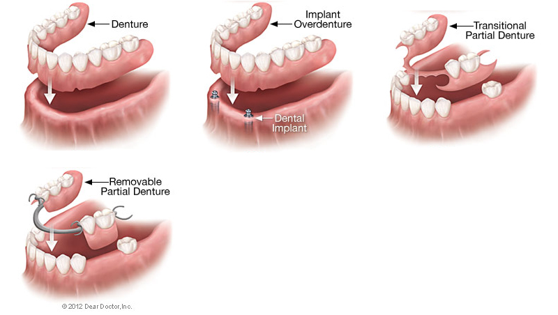 removable dentures brooklyn, removable dentures, dentist brooklyn