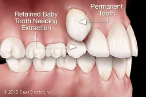 retained-baby-tooth-300x200