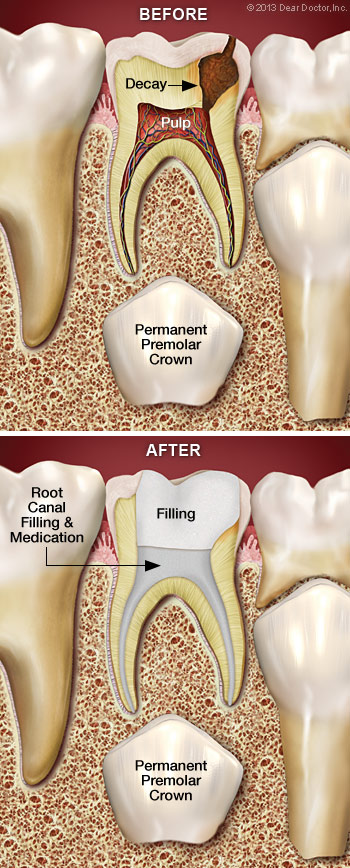 root-canal-treatment-for-children