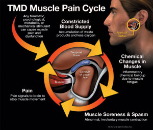tmd-pain-cycle