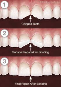 cracked teeth brooklyn, cracked teeth, dentist brooklyn