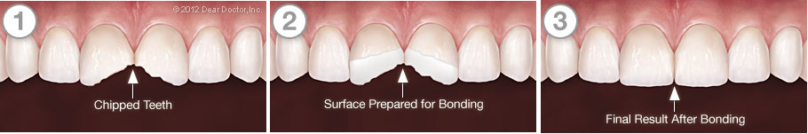 tooth-bonding-seriesnew