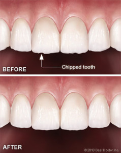 tooth-contouring-reshaping